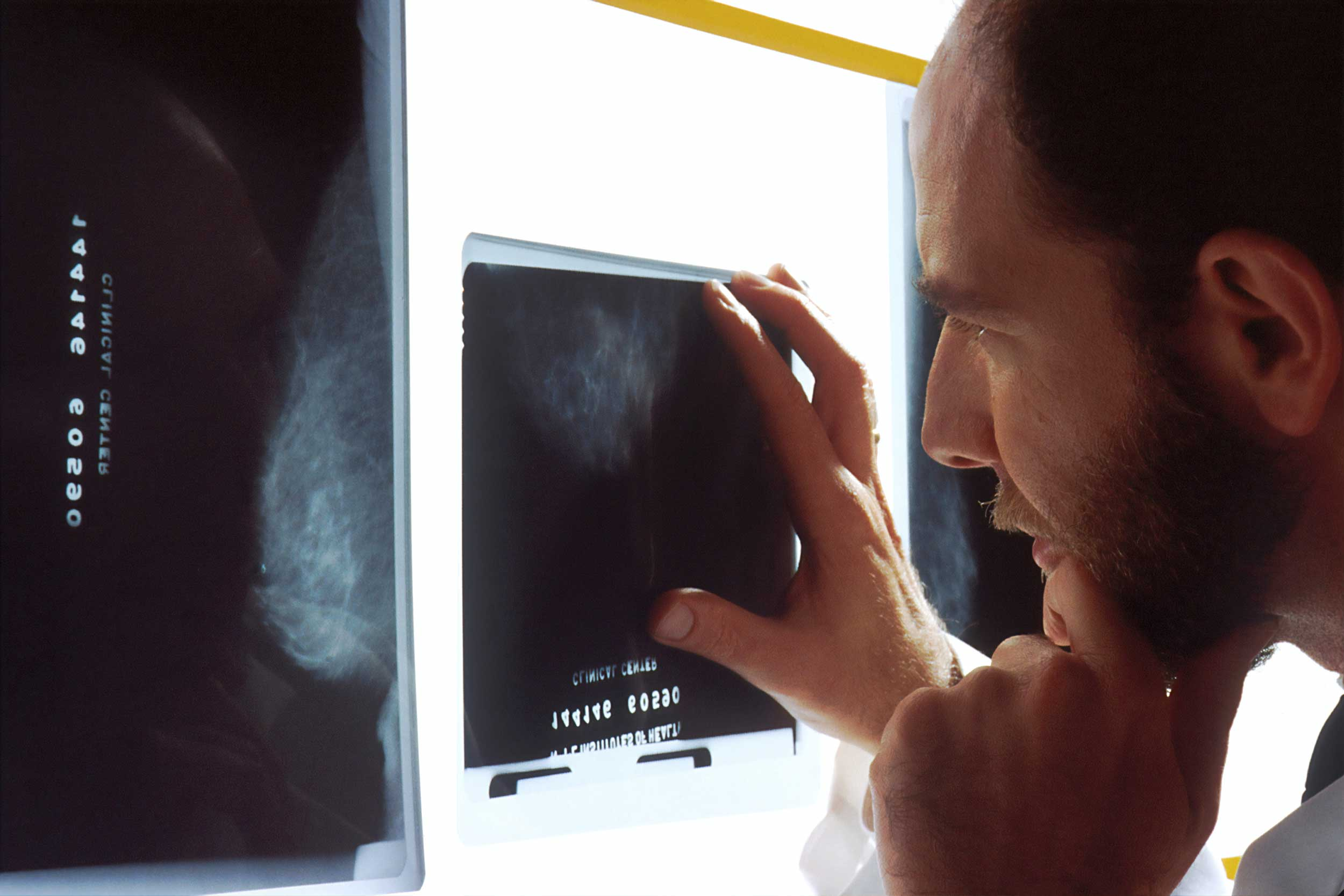 Cancer de la thyroïde : plus d'1 million de surdiagnostics | Blog Doctoome